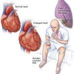 сърдечна недостатъчност симптоми