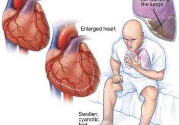 Кои са причините за сърдечна недостатъчност