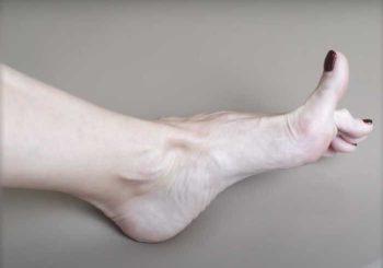 8 упражнения за лечение на кокалчета на стъпалото