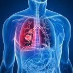рак на белия дроб причини симптоми