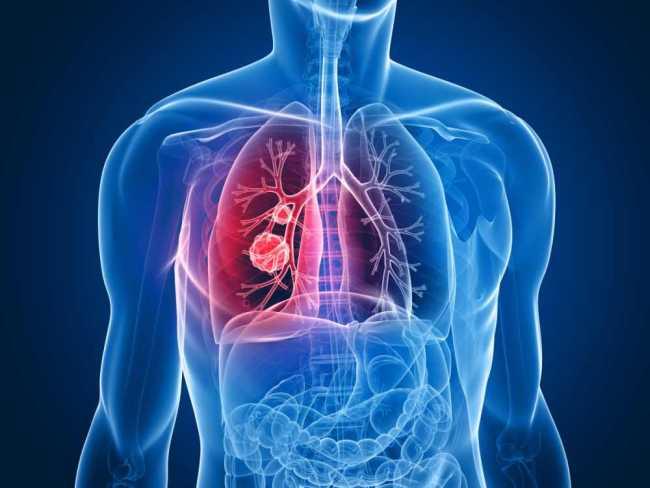 Защо от рак на белия дроб боледуват и непушачи?